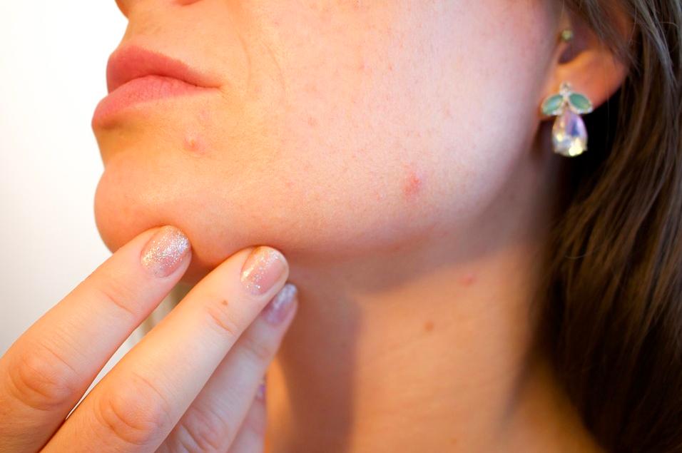 De 5 meest voorkomende oorzaken van puistjes / acne
